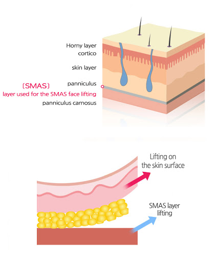 Read more about the article The Deep-Plane Facelift: What is it and Why is it Important?